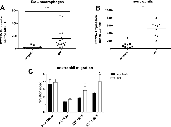 Up-regulation of P2Y2R expression in idiopathic pulmonary fibrosis.