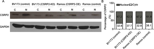 Subcellular localization of CSRP2 in neoplastic B-cells.