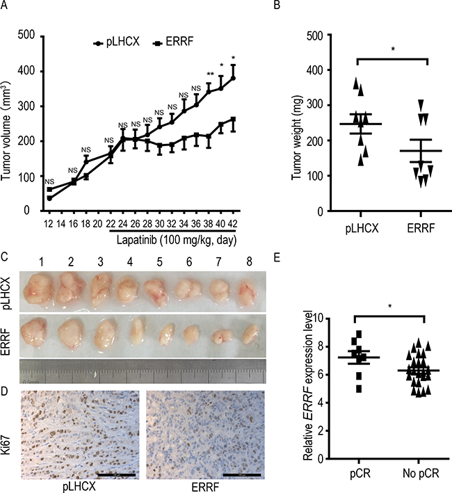 ERRF expression sensitizes xenograft breast cancer to the therapeutic effect of lapatinib and predicts response to lapatinib in breast cancer patients.