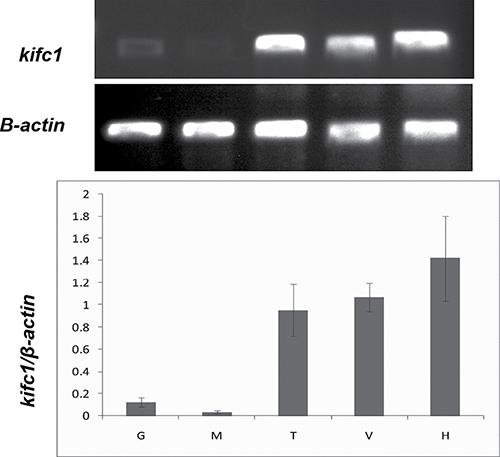 Semi-quantitative RT-PCR analysis of kifc1 mRNA levels among different tissues.