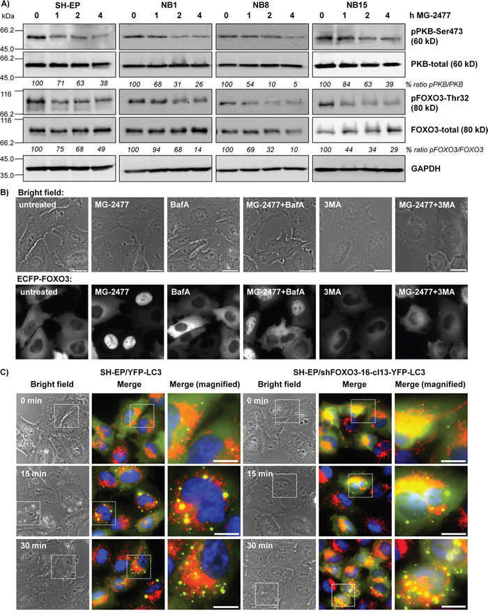 MG-2477-treatment causes PKB de-phosphorylation and nuclear accumulation of FOXO3.