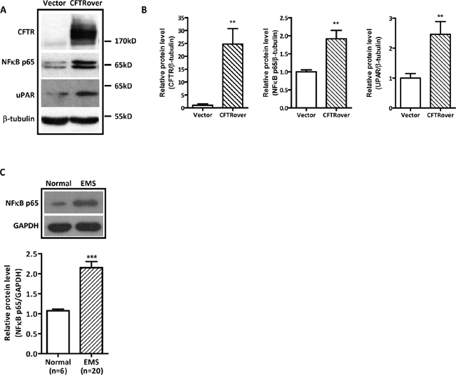 Effect of CFTR overexpression on NFκB p65 and uPAR expression in ISK cells.