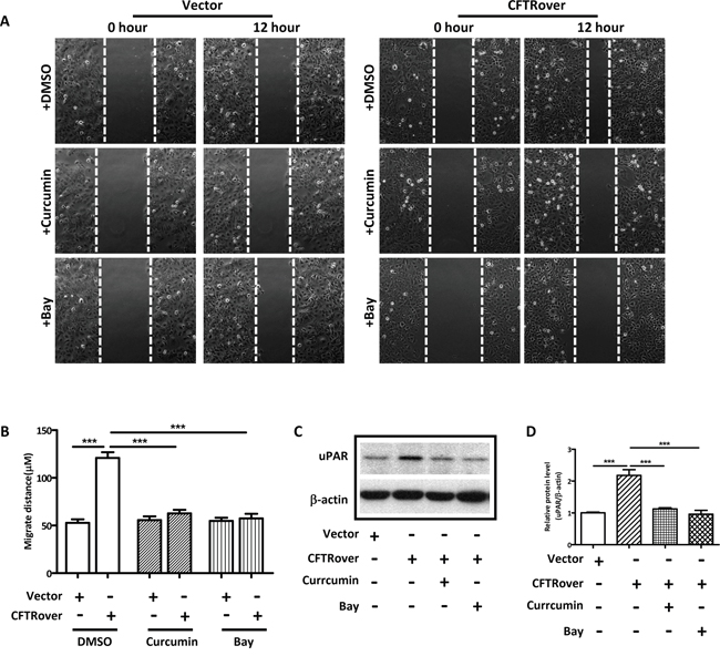 NFκB inhibitors reduce cell migration and uPAR expression in CFTR-overexpressing ISK cells.