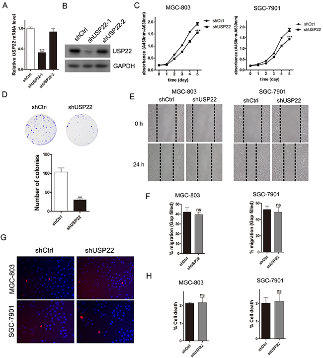 Knockdown of USP22 inhibits GC cell proliferation.