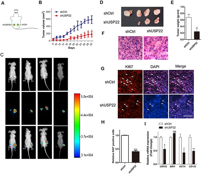 USP22 silencing suppresses tumor growth in GC xenografts in vivo.
