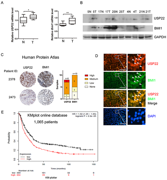 Overexpression of USP22 correlates with BMI1 in GC tissue samples and is association with poor prognosis.