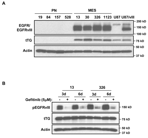 Determining potential upstream regulators of tTG expression in MES GSCs.