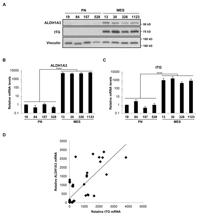 ALDH1A3 and tTG are expressed exclusively in MES GSCs.
