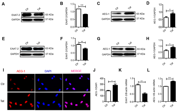 HIV-1 Tat decreases EAAT-2 expression and increases AEG-1 expression