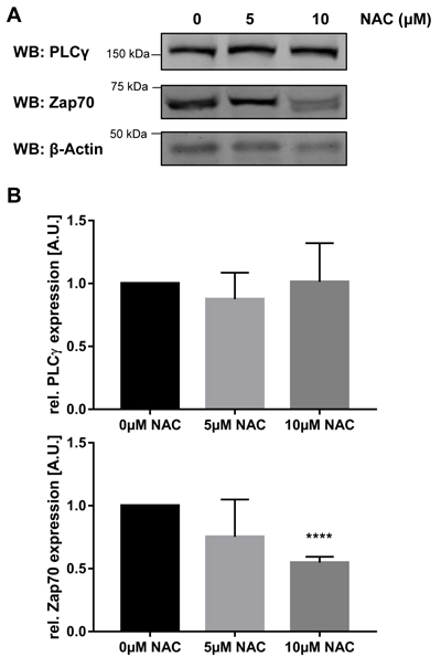 Treatment with NAC destabilizes Zap70wt.
