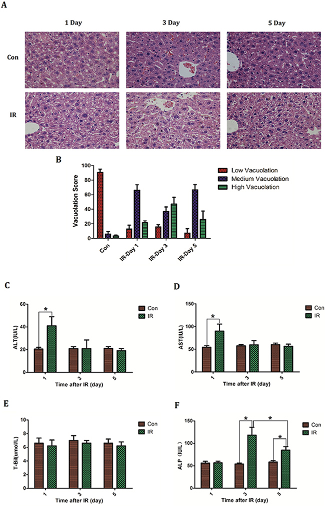 The establishment of acute radiation-induced liver injury model of mice.