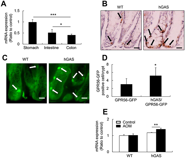 GPR56 expresses in the murine colonic mucosa and upregulates in the hGAS mice colon.