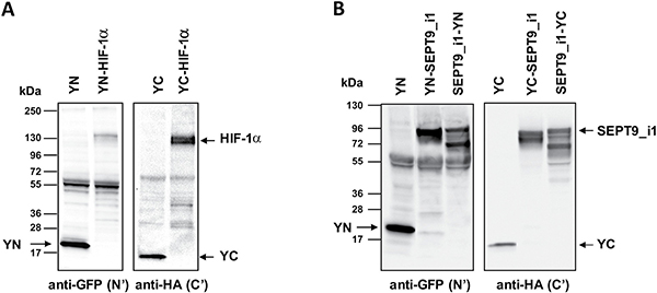 Expression of split-YFP HIF-1α and SEPT9_i1 chimeras.