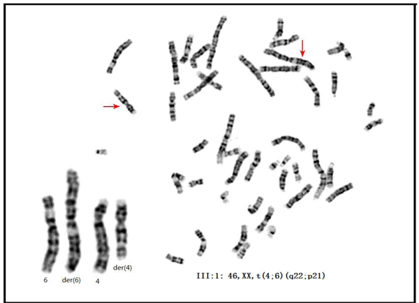 The karyotype of the proband of family 01.