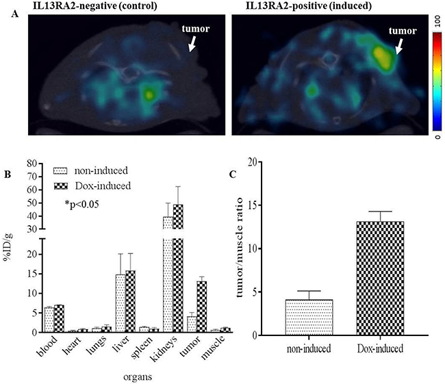 PET/CT of [64Cu]Pep-1L targeting IL13RA2 expressing tumors.
