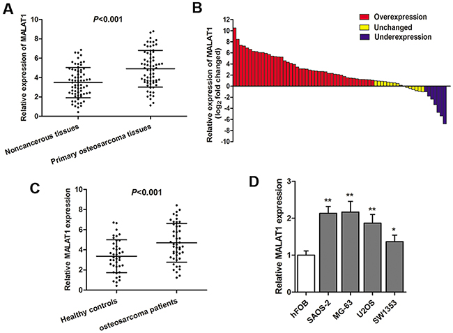LncRNA MALAT1 is up-regulated in osteosarcoma specimens and cell lines.
