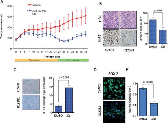 In vivo activity of JQ1 in medulloblastoma xenografts.
