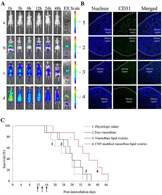 Real-time imaging and overall anticancer efficacy in glioma-bearing mice in vivo.