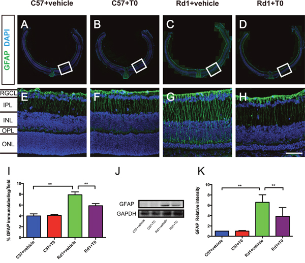 T0 treatment decreases the overexpression of GFAP in rd1 mice.