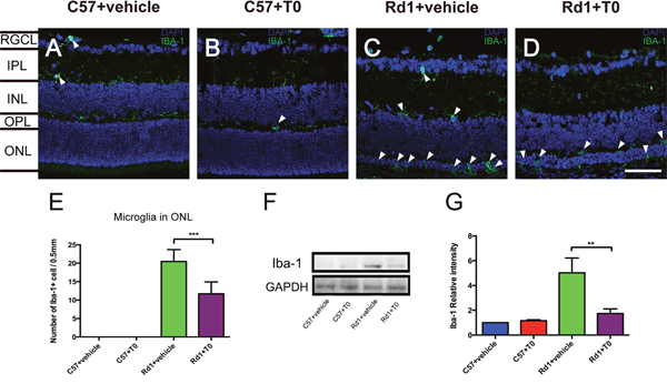 Effect of T0 on Iba-1-positive microglia cells in the retina of C57 mice and rd1 mice at P14.