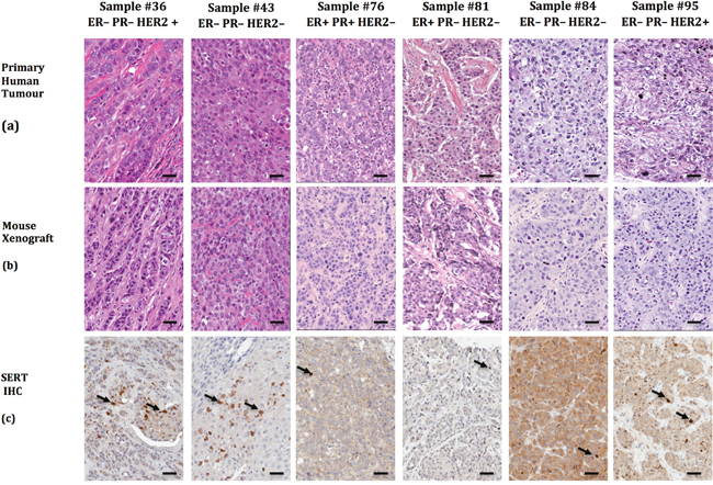 Patient-derived breast tumor xenografts recapitulate the phenotypic heterogeneity of the primary tumor from which they were derived and express SERT.