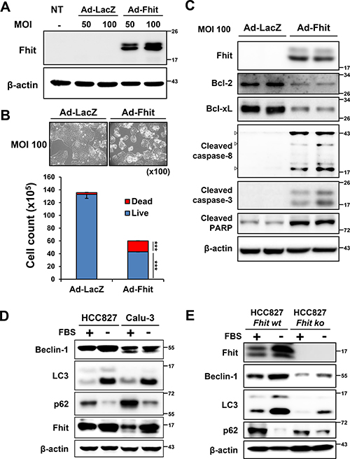 Starvation-induced autophagy and up-regulation of Fhit in NSCLC cells.