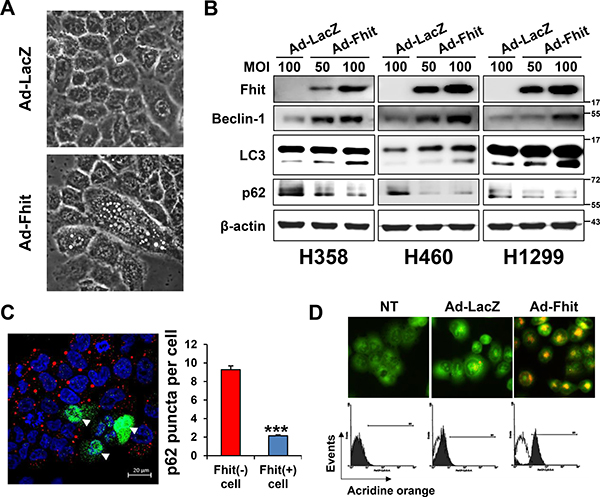 Induction of autophagy in Ad-Fhit-transduced NSCLC cells.