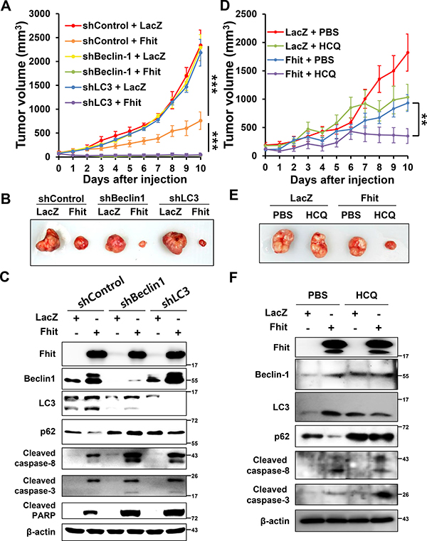 Inhibition of autophagy enhances the antitumor effect of Fhit protein
