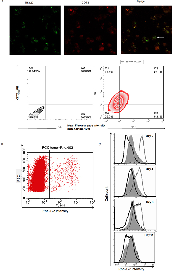 Rhohigh cells possess CSC properties and may co-displayed with Cell Marker CD73 in ccRCC specimens.
