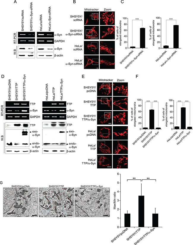 Overexpression of α-Syn inhibits mitochondrial elongation induced by TTP overexpression.