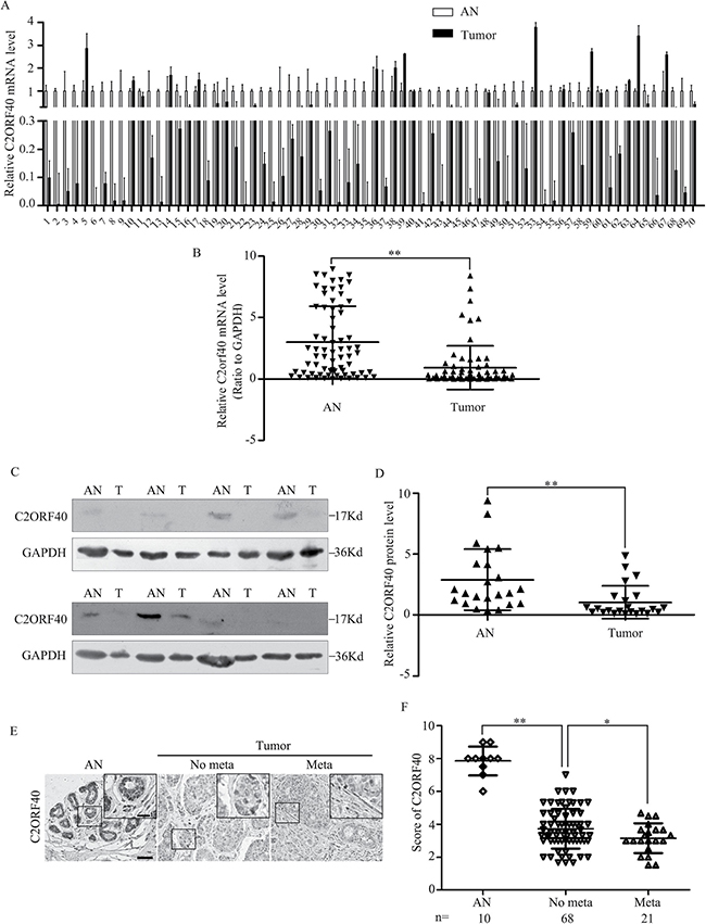C2ORF40 expression deficiency correlates with breast cancer clinicopathologic characteristics.