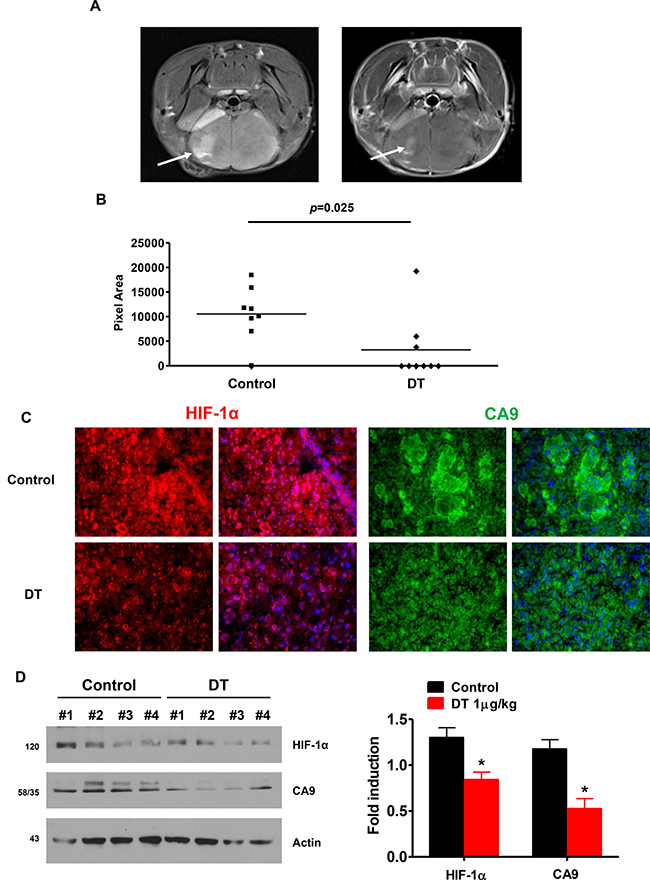 DT treated GSC have reduced capacity for tumor formation and attenuates HIF signaling in an orthotopic model.
