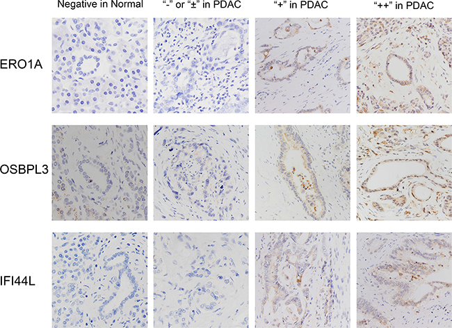 Characterization of ERO1A, OSBPL3 and IFI44L protein expression in human PDAC tissues and paired adjacent non-tumor tissues by immunohistochemistry staining and classified as strong expression (++), moderate expression (+), weak positive or negative expression (± or -).