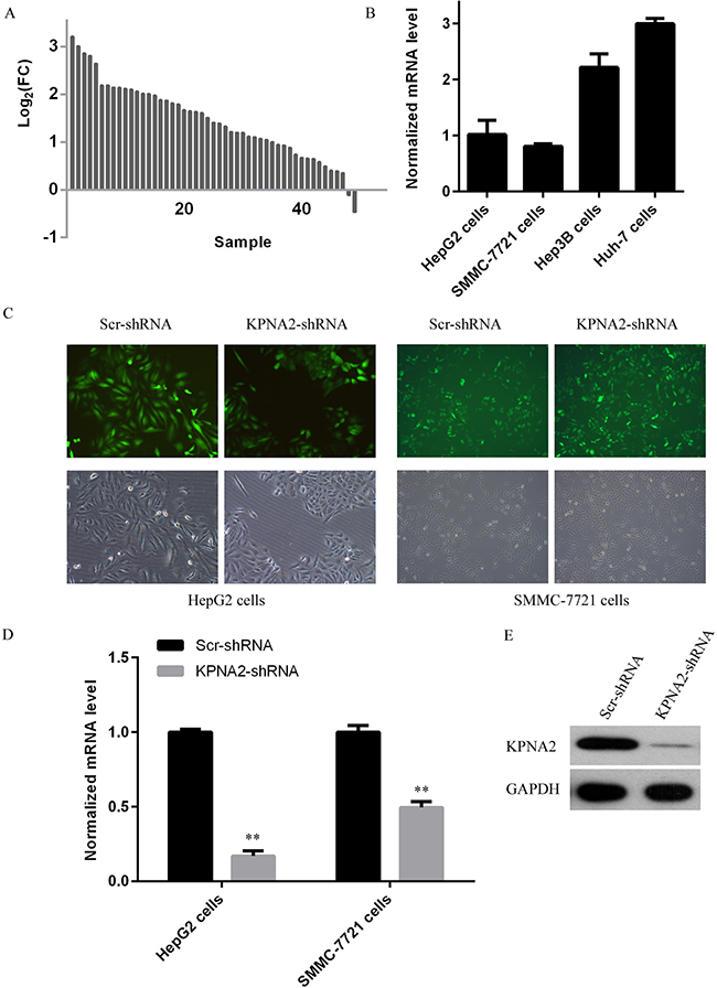 KPNA2 expression status and its knockdown at both the mRNA and the protein levels in human hepatocellular carcinoma cell lines HepG2 and SMMC-7721 using a lentivirus-mediated shRNA strategy.