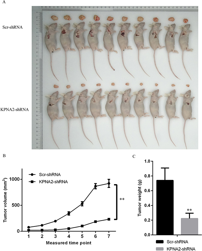 Tumorigenesis was inhibited by KPNA2 knockdown in a xenograft hepatocellular carcinoma model in nude mice.
