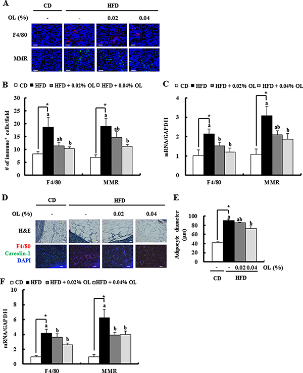 OL suppresses HFD-induced accumulation of M2-macrophages in the tumor tissues and adipose tissues surrounding the LNs.