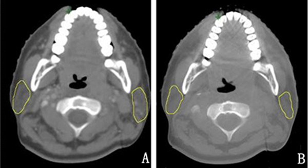The contrast of the nasopharynx in the transverse section between the planning CT image and CBCT image before the first radiation from one patient.