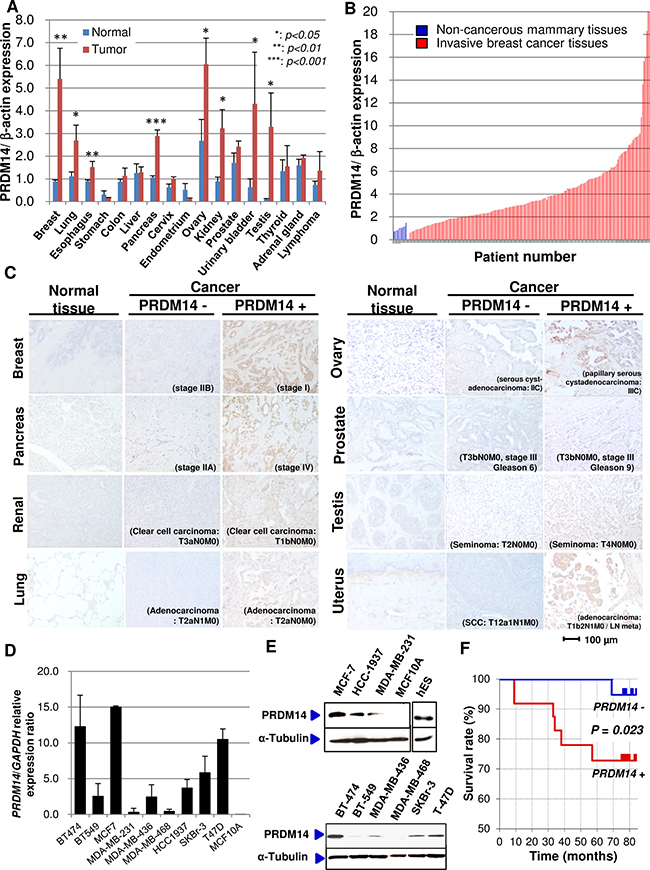 PRDM14 expression in cancer tissues.