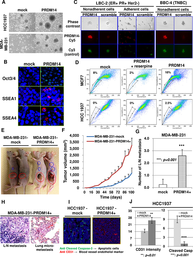 PRDM14 is required for the stemness phenotype of breast cancers.