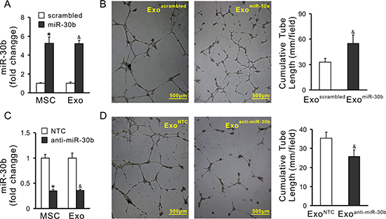 Pro-angiogenic properties of exosomes is associated with the expression of miRs.
