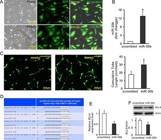 Overexpression of miR-30b downregulates DLL4 expression in HUVECs.