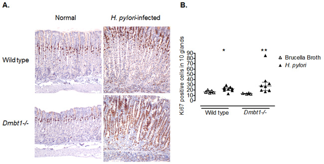 Enhanced proliferation of gastric epithelial cells in Dmbt1-/- mice following H. pylori infection.