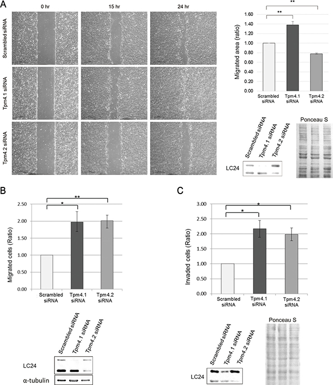 Loss of Tpm4 isoforms affects cell migration and invasion.