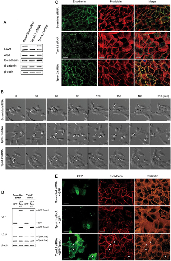 Loss of Tpm4.1 impairs cell-cell adhesions.