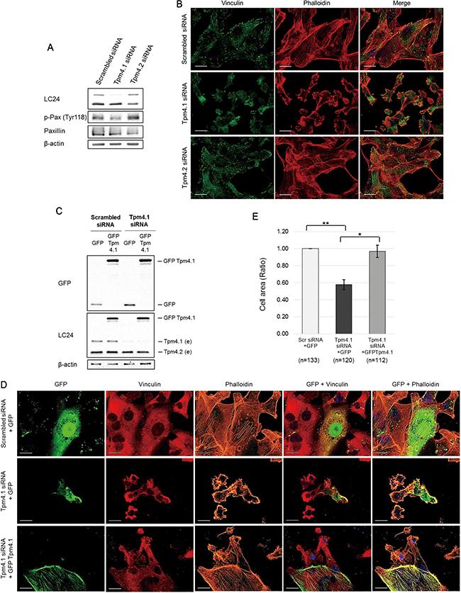 Loss of Tpm4.1 decreases stress fibers and focal adhesions in MDA-MB-231.
