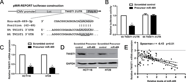 miR-489 regulates TWIST1 abundance in CRC cells.