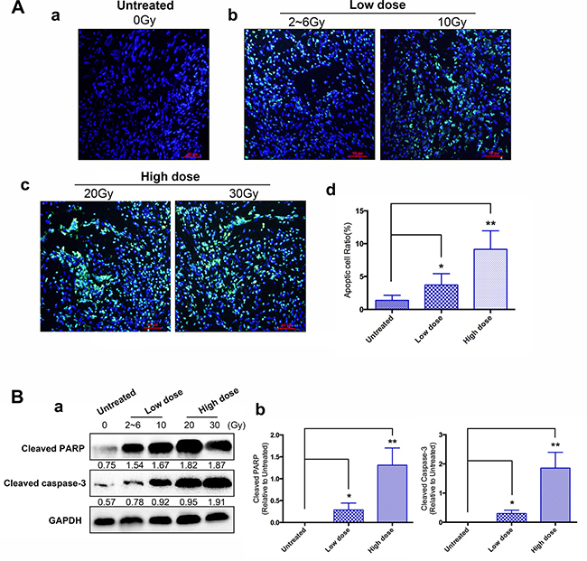 Effects of IER5 upon radiation-induced cell apoptosis in cervical cancer tissues.