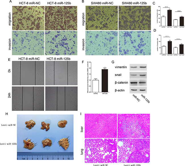 MiR-125b promoted the migration and invasion of CRC cells in vitro and in vivo.
