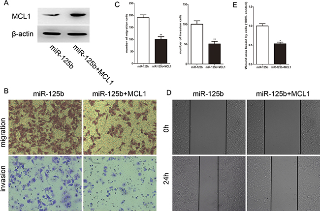Reexpression of MCL1 reverses the effect of migration and invasion induced by miR-125b in HCT-8.