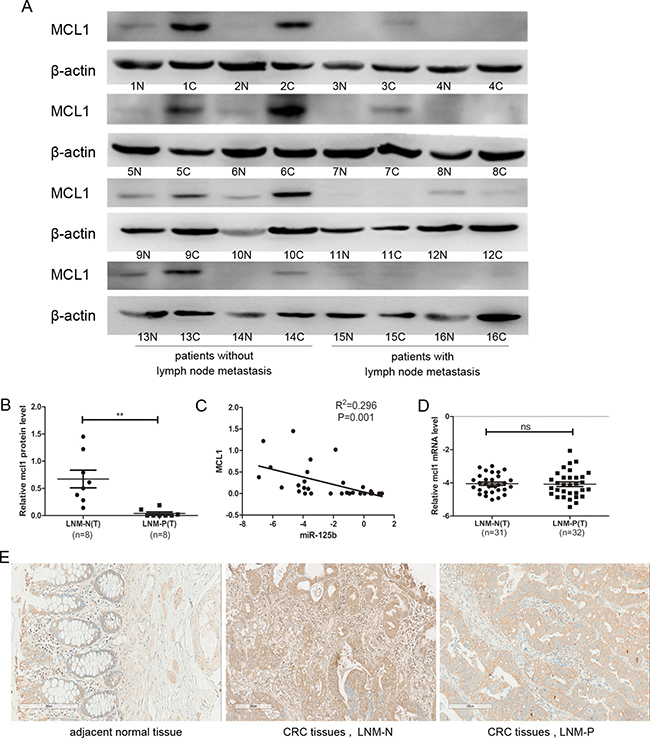 The protein expression level of MCL1 was downregulated in CRC tissue with lymph node metastasis compared to those without lymph node metastasis.